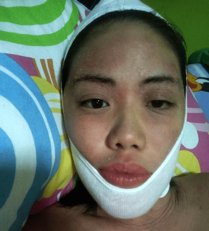 Dermatologist face sock