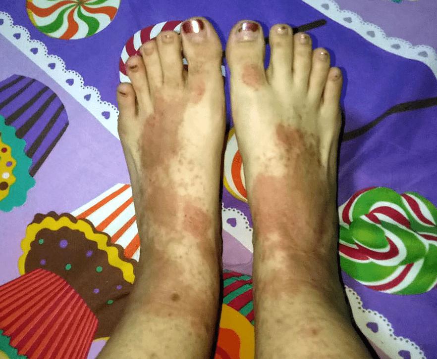 Eczema in Singapore - foot rashes