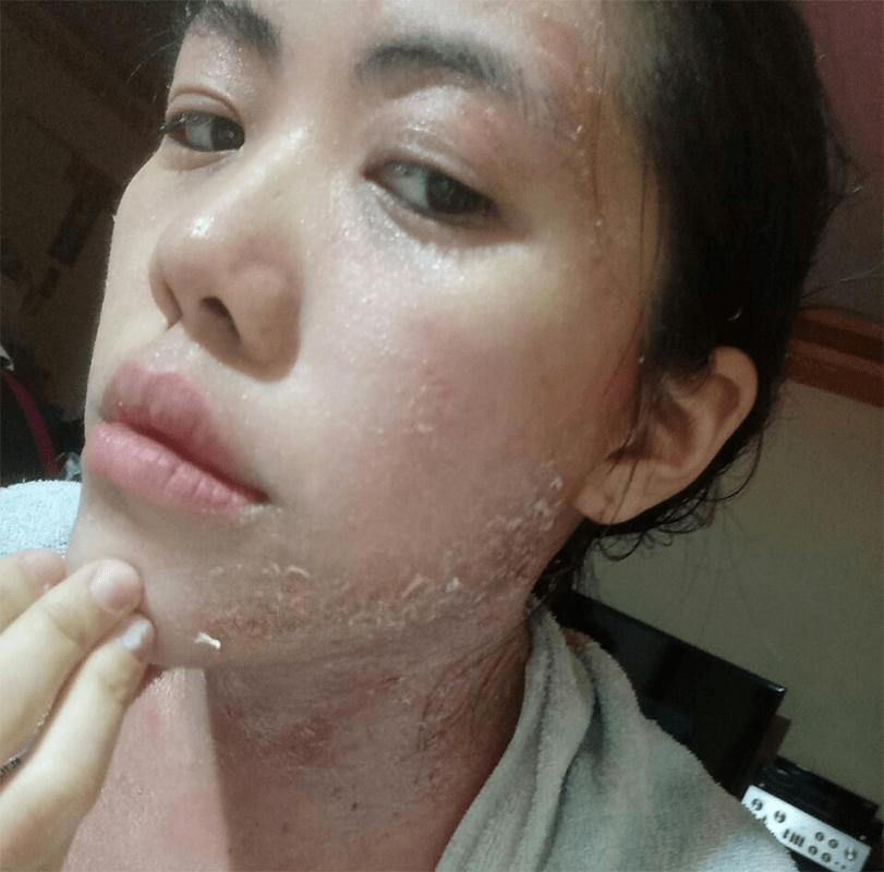 Eczema peeling skin