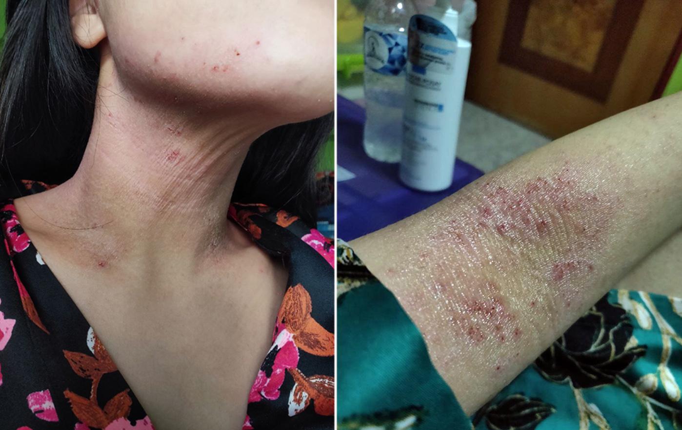 Eczema in Singapore - Neck and Elbow Rash