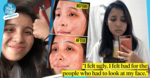 acne treatment product singapore