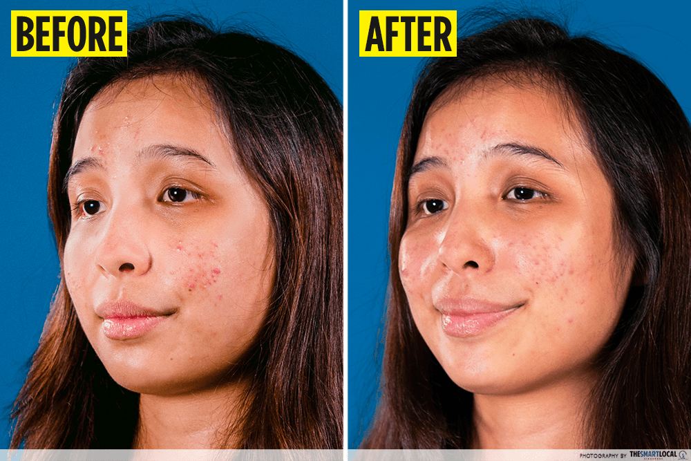 acne treatment product review