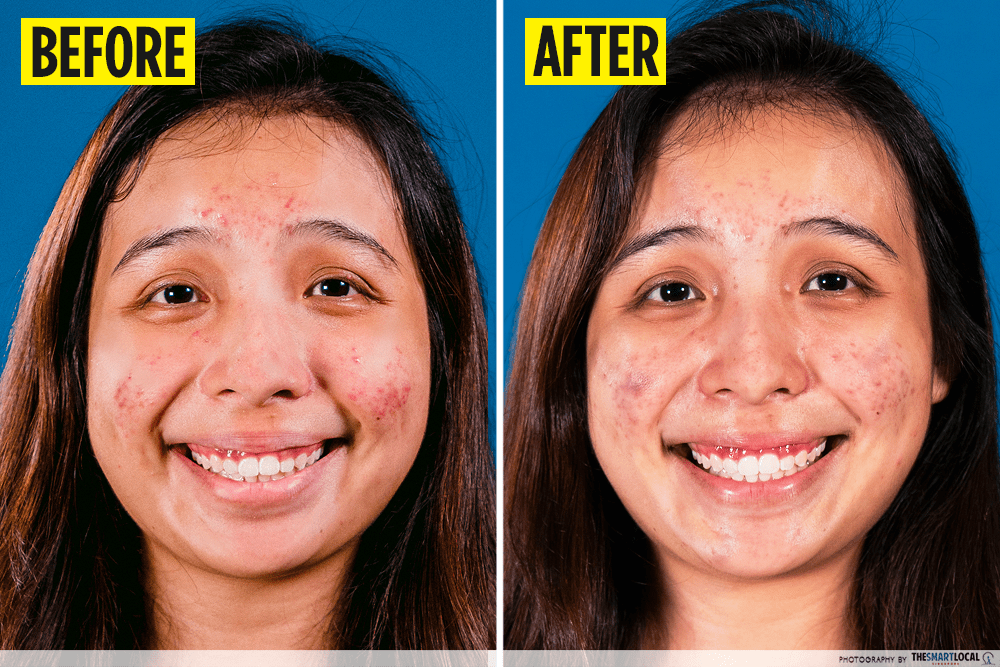 acne treatment product result