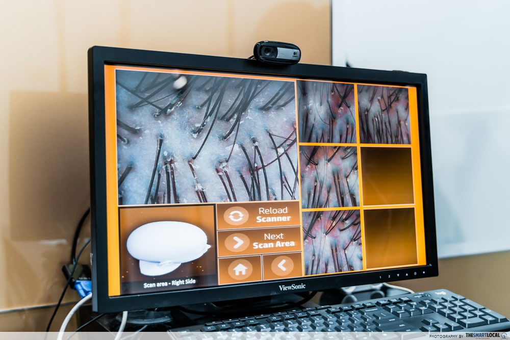 scalp scan