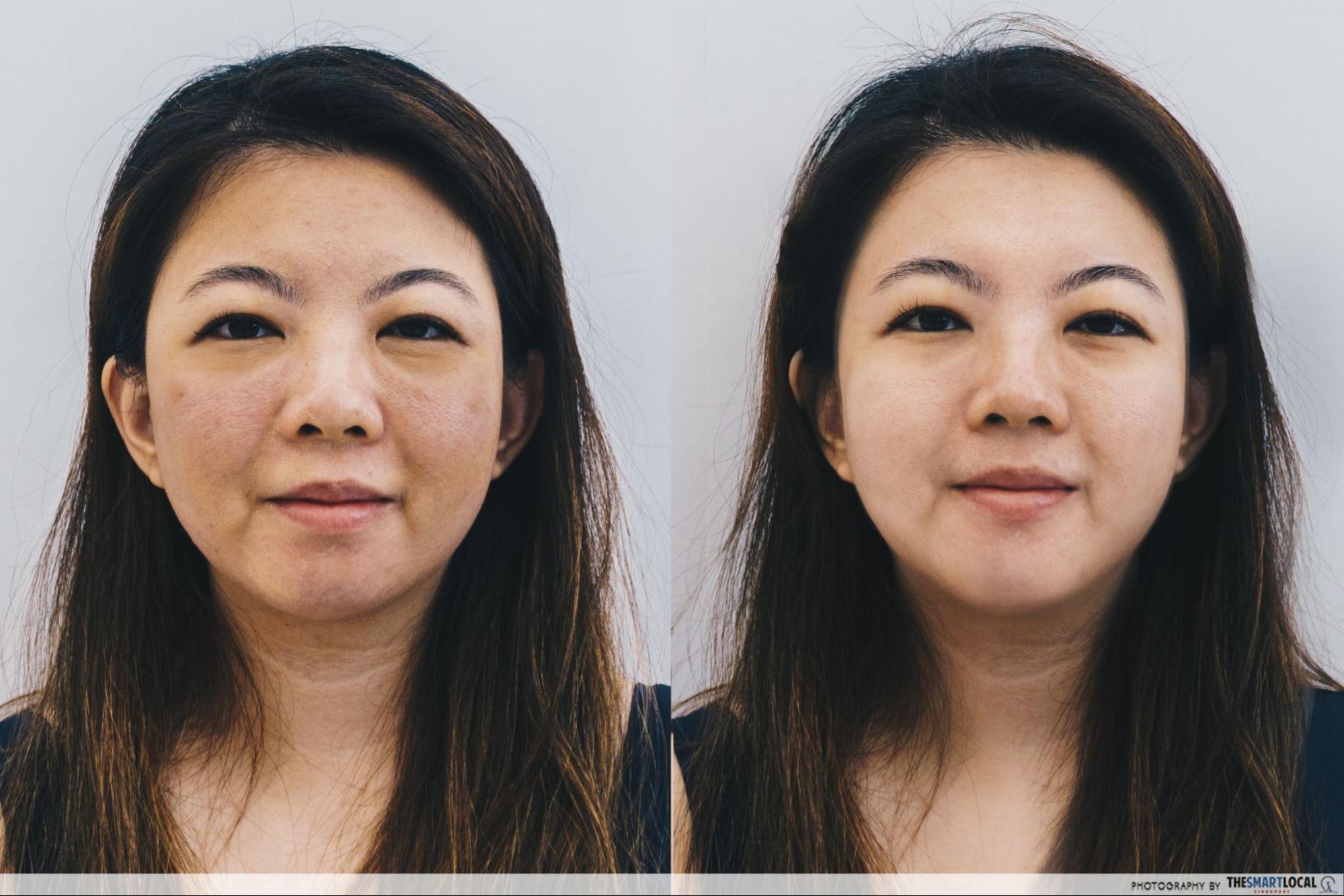 shakura - before & after