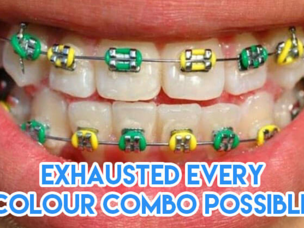 15 Must Knows About Braces For Potential Metalmouths To Survive